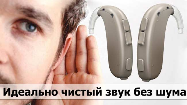 Oticon Xceed купить